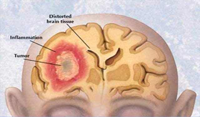 brain cancer thesis Brain cancers can arise from primary brain cells, the cells that form other brain components (for example, membranes, blood vessels), or from the growth of cancer cells that develop in other organs and that have spread to the brain by the bloodstream (metastatic or secondary brain cancer.